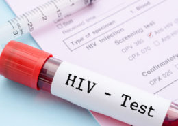 The Future of HIV Control Looks Promising - Health Council
