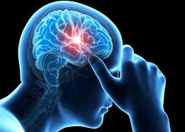 New treatment Migraine available in Memphis | WREG.com - Health Council