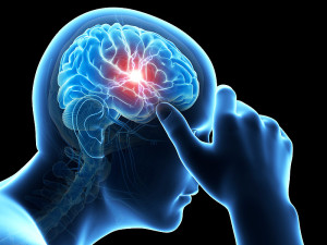 New treatment Migraine available in Memphis   WREG.com - Health Council
