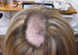 My Struggle With Hair Pulling (Trichotillamania) - Health Council