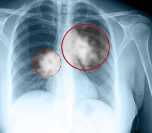 US may gain lung disease vaccine through improved relations with Cuba   Athensnews   redandblack.com - Health Council