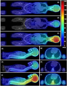 New Collaborative Project Aims To Develop Novel Imaging Technology For Cancer Treatments - Health Council