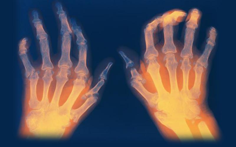 High Hopes for Individuals with Rheumatoid Arthritis - Health Council