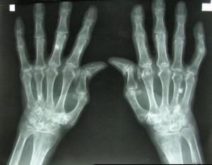 Breakthrough Technology For Bone Repair - Health Council