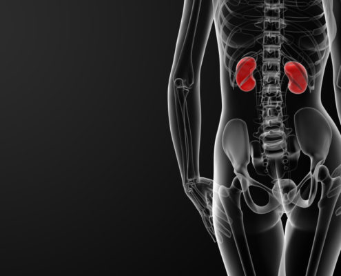 Doctors use 3-D Printed Kidney to Help Save Woman's Organ - Health Council
