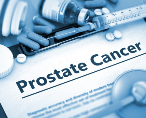 Common Prostate Cancer Treatment May Increase Risk for Alzheimer's - Health Council