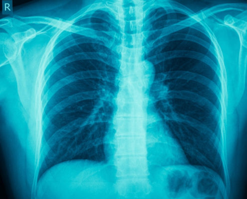 COPD - American Health Council